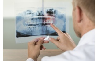 tooth_xray_iStock_88860379_LARGE-300x200